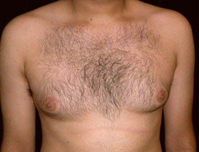Gynecomastia Gallery - Patient 39350510 - Image 1