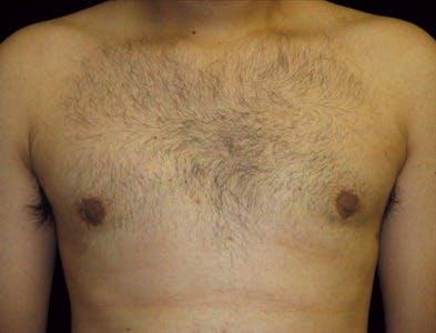 Gynecomastia Gallery - Patient 39350510 - Image 2
