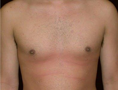 Gynecomastia Gallery - Patient 39350511 - Image 2