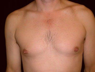 Gynecomastia Gallery - Patient 39350512 - Image 1