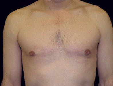 Gynecomastia Gallery - Patient 39350518 - Image 2