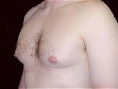 Gynecomastia Gallery - Patient 39350519 - Image 1
