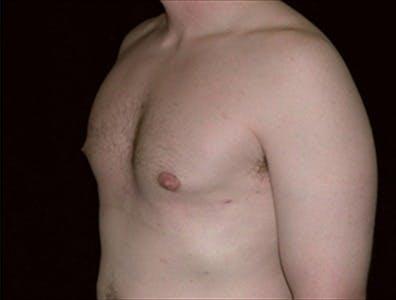 Gynecomastia Gallery - Patient 39350519 - Image 2