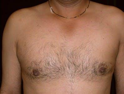 Gynecomastia Gallery - Patient 39350532 - Image 2