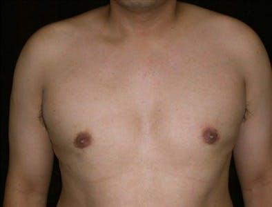 Gynecomastia Gallery - Patient 39350534 - Image 2