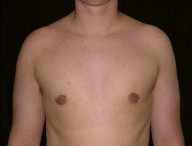 Gynecomastia Gallery - Patient 39350535 - Image 2