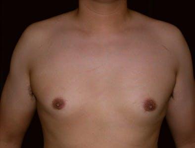 Gynecomastia Gallery - Patient 39350538 - Image 2