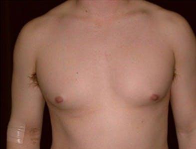 Gynecomastia Gallery - Patient 39350539 - Image 1