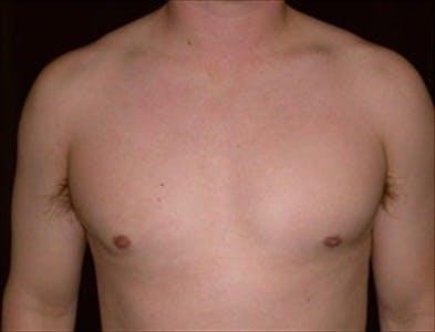 Gynecomastia Gallery - Patient 39350539 - Image 2