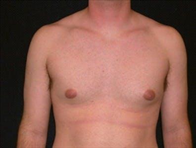 Gynecomastia Gallery - Patient 39350546 - Image 1