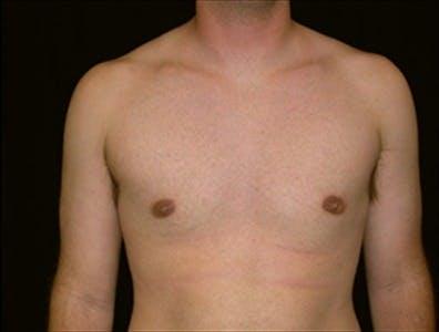 Gynecomastia Gallery - Patient 39350546 - Image 2