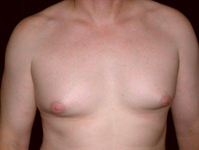 Gynecomastia Gallery - Patient 39350547 - Image 1