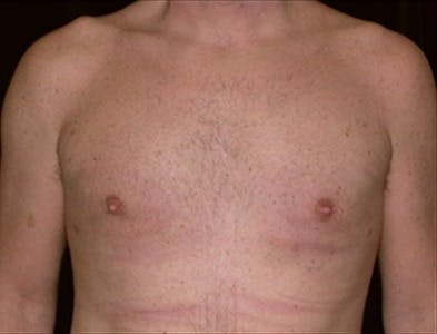 Gynecomastia Gallery - Patient 39350553 - Image 2