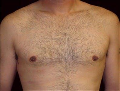 Gynecomastia Gallery - Patient 39350564 - Image 2