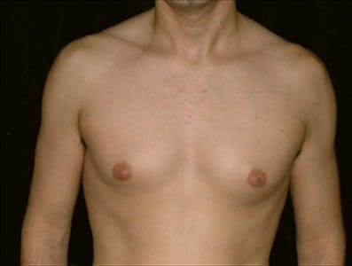 Gynecomastia Gallery - Patient 39350567 - Image 1