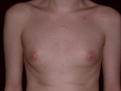 Gynecomastia Gallery - Patient 39350570 - Image 1