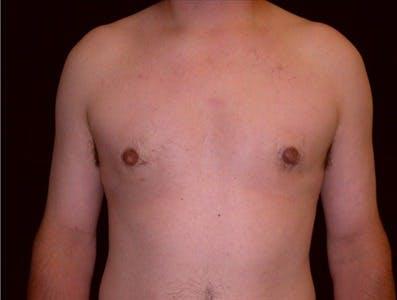 Gynecomastia Gallery - Patient 39350572 - Image 2