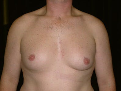 Gynecomastia Gallery - Patient 39350575 - Image 1