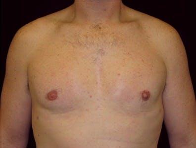 Gynecomastia Gallery - Patient 39350575 - Image 2