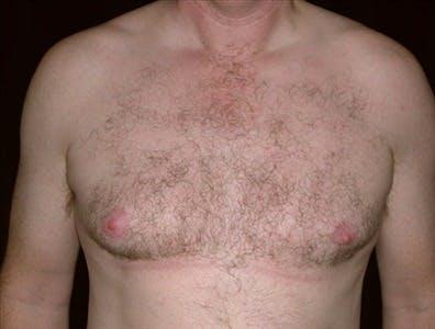 Gynecomastia Gallery - Patient 39350576 - Image 1