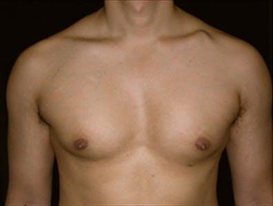 Gynecomastia Gallery - Patient 39350577 - Image 1