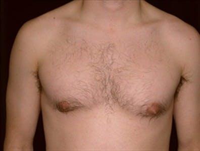 Gynecomastia Gallery - Patient 39350579 - Image 1