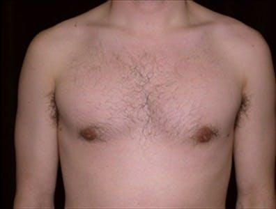 Gynecomastia Gallery - Patient 39350579 - Image 2