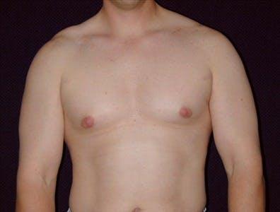 Gynecomastia Gallery - Patient 39350580 - Image 1