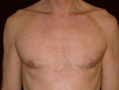 Gynecomastia Gallery - Patient 39350592 - Image 2