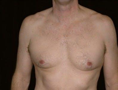 Gynecomastia Gallery - Patient 39350593 - Image 1