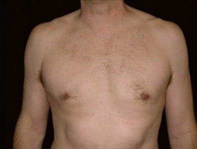 Gynecomastia Gallery - Patient 39350593 - Image 2