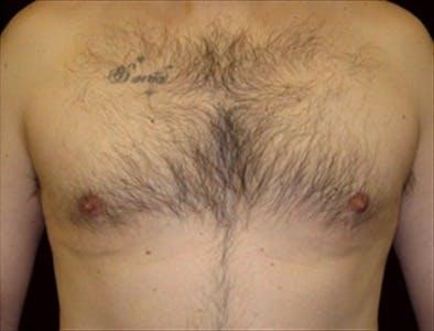 Gynecomastia Gallery - Patient 39350600 - Image 2