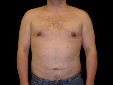 Gynecomastia Gallery - Patient 39350601 - Image 2