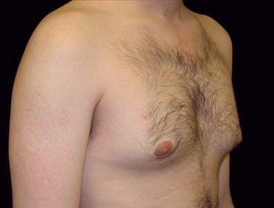 Gynecomastia Gallery - Patient 39350610 - Image 1