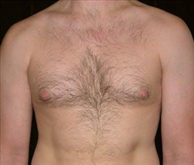 Gynecomastia Gallery - Patient 39350615 - Image 1