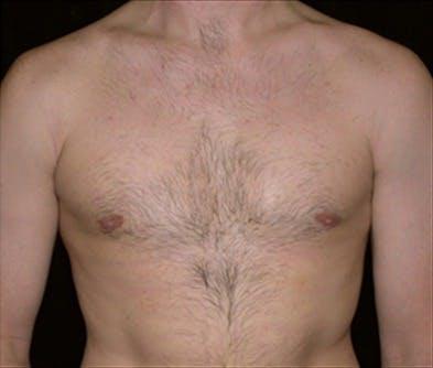 Gynecomastia Gallery - Patient 39350615 - Image 2
