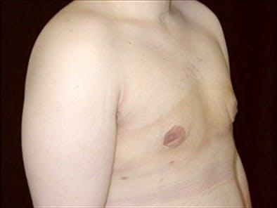Gynecomastia Gallery - Patient 39350617 - Image 2