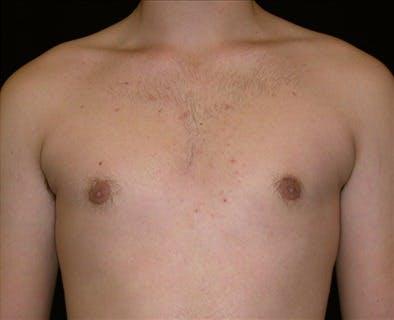 Gynecomastia Gallery - Patient 39350623 - Image 2