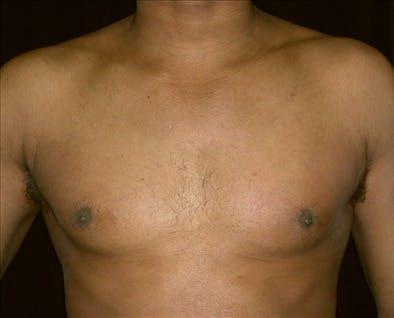 Gynecomastia Gallery - Patient 39350626 - Image 1