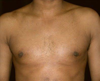 Gynecomastia Gallery - Patient 39350626 - Image 2
