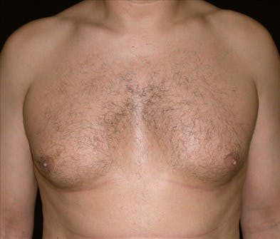 Gynecomastia Gallery - Patient 39350636 - Image 1