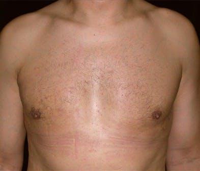 Gynecomastia Gallery - Patient 39350636 - Image 2