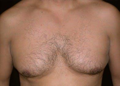 Gynecomastia Gallery - Patient 39350643 - Image 1