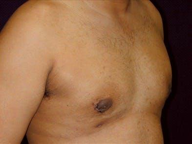 Gynecomastia Gallery - Patient 39350649 - Image 2