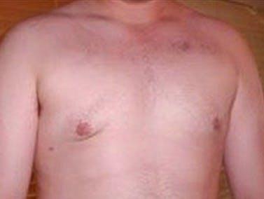 Gynecomastia Gallery - Patient 39350653 - Image 2