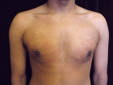 Gynecomastia Gallery - Patient 39350667 - Image 2