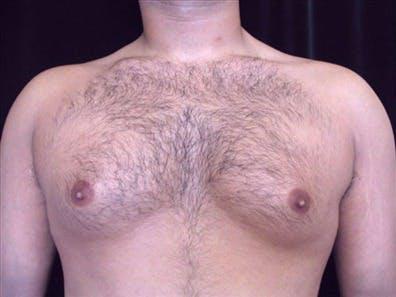 Gynecomastia Gallery - Patient 39350672 - Image 1