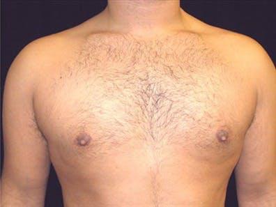 Gynecomastia Gallery - Patient 39350672 - Image 2