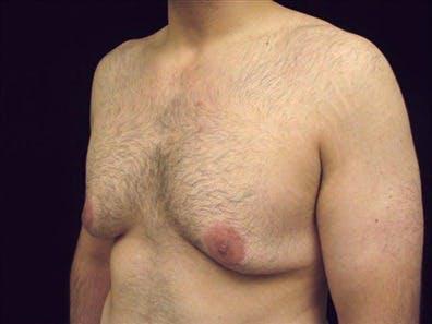 Gynecomastia Gallery - Patient 39350676 - Image 1