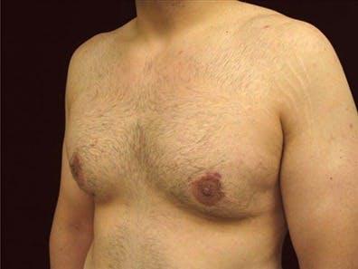 Gynecomastia Gallery - Patient 39350676 - Image 2